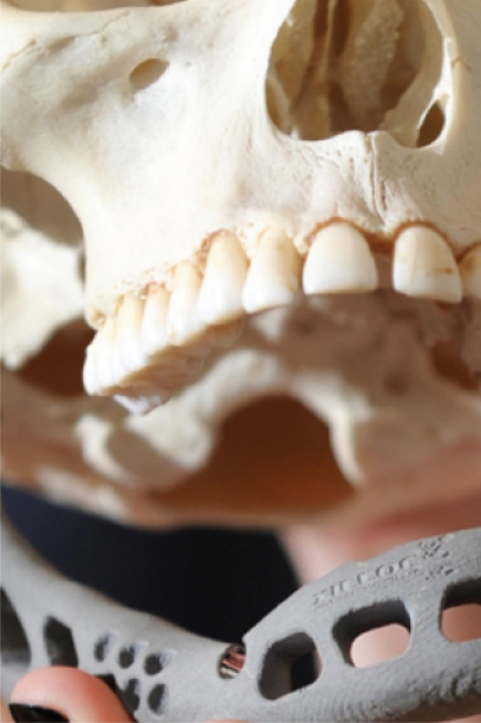 3D Printing a jaw